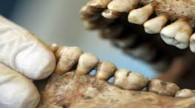 Odontología Forense Sección B